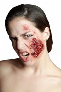 Kunstwunde Infizierte Hautstelle hautfarben-rot